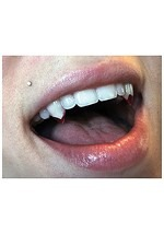 Small Blood Tip Adult Vampire Fangs